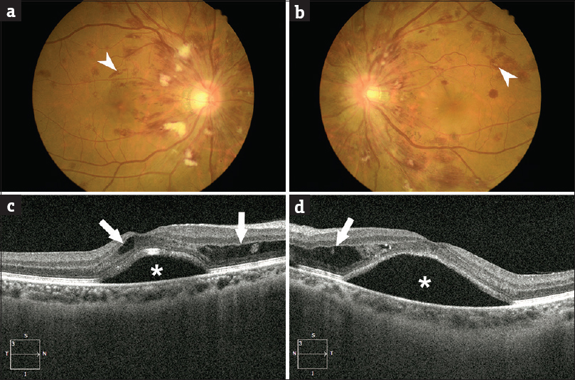 Figure 1: Fundus photography of the (a) right eye and (b) left eye showed dilation and tortuosity of the central retinal vein, extensive intraretinal hemorrhage, disc swelling, multiple cotton wool spots, Roth spots (arrowheads), and macular edema. Optical coherence tomography images of the right (c) and left (d) macula revealed marked subretinal fluid (asterisk) and intraretinal fluids (arrows)