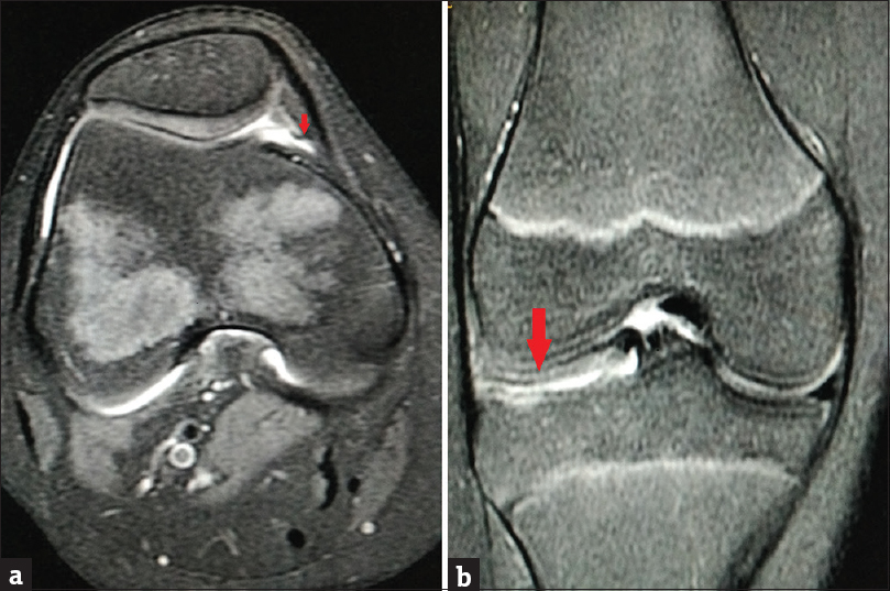 Figure 1: (a) Axial fat-sat spine-cho proton density magnetic resonance image of the right knee (3000/50) in a 14-year-old female demonstrating a cord-like elevation (arrow) in the medial synovial wall consistent with mediopatellar plica (Sakakibara type A). (b) Associated discoid lateral meniscus (arrow) in the same patient as in (a). Coronal fat-sat spine-cho proton density magnetic resonance image of the right knee (4136/50) demonstrating lateral meniscal body width of more than 15 mm with absent bow tie sign
