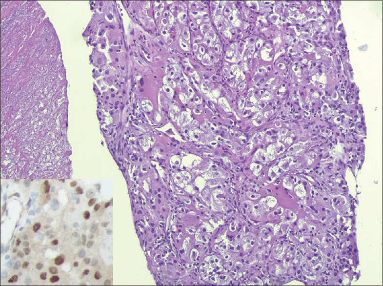 Figure 4: The pathology of vertebral tumor biopsy: Similar solid-papillary neoplasm composed of epithelioid clear cells with tumor necrosis (left field) (H and E, ×200) with strong nuclear labeling for transcription factor for immunoglobulin heavy-chain enhancer 3 proteins (inset, IHC, ×400), consistent with metastasis of Xp11 translocation renal cell carcinoma from the left renal tumor